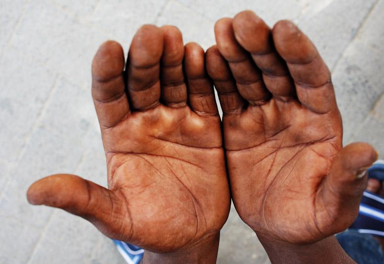 Gebärde der offenen Hände